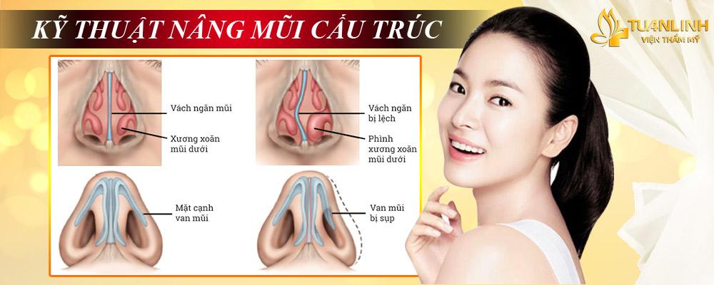 Hình ảnh: Kỹ thuật nâng mũi cấu trúc | Ưu điểm - Nhược điểm của Nâng mũi theo từng phương pháp