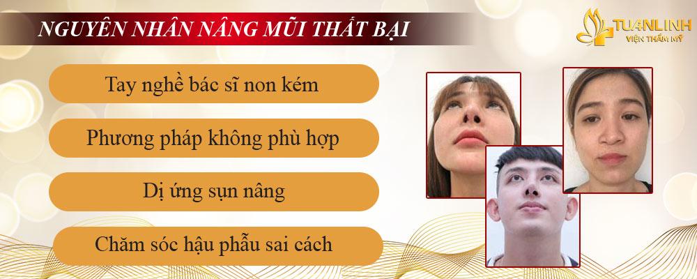 Nguyên nhân khiến mũi bị lệch, hỏng sau nâng mũi.