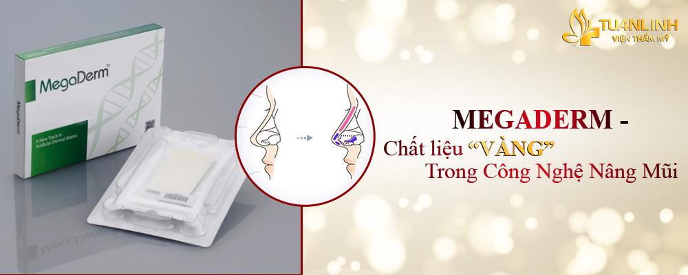 Chất liệu nâng mũi bọc megaderm đang được ứng dụng tại Tuấn Linh