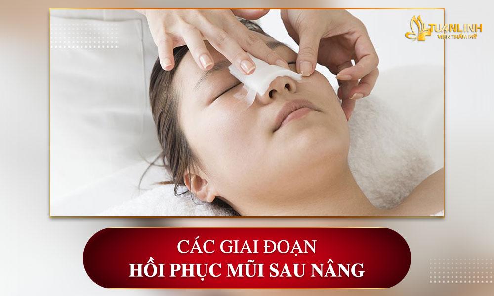 Các giai đoạn hồi phục mũi sau nâng