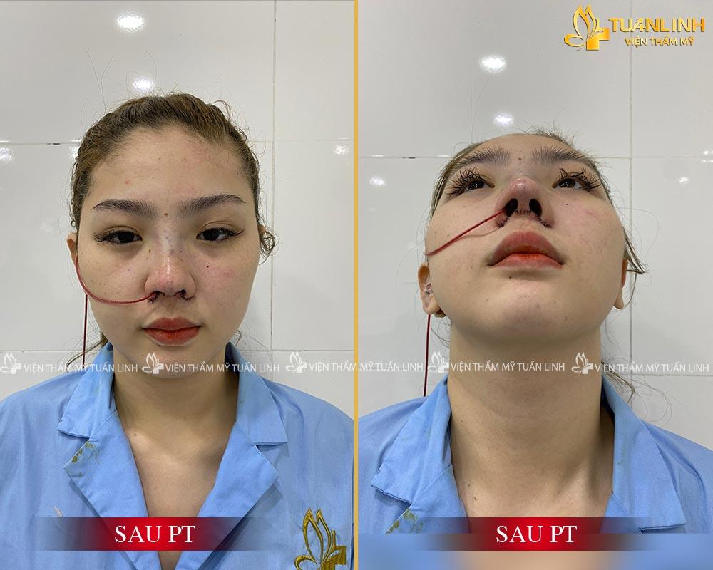 Hình ảnh khách hàng sau phẫu thuật