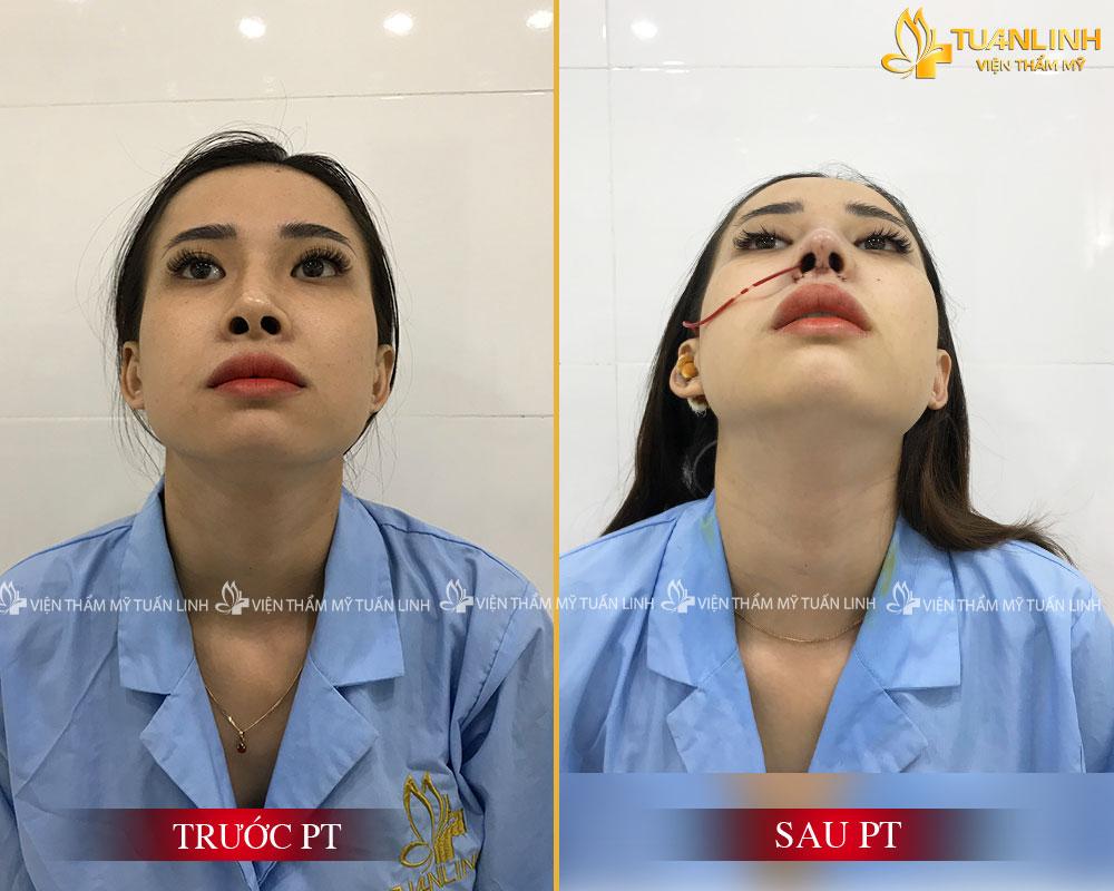 Hình ảnh trước sau Cắt cánh mũi - Cuộn cánh mũi