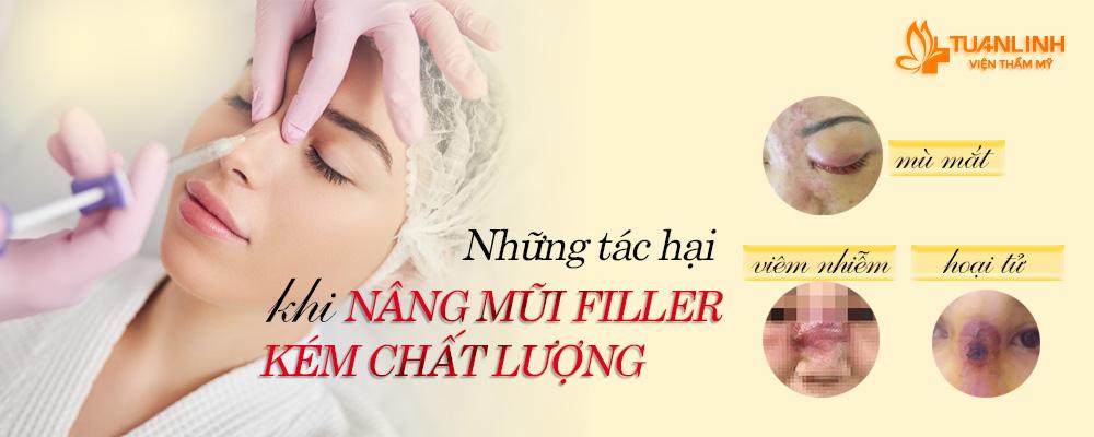 Những tác hại việc nâng mũi bằng filler | Những tác hại của việc Nâng mũi - Cách khắc phục triệt để