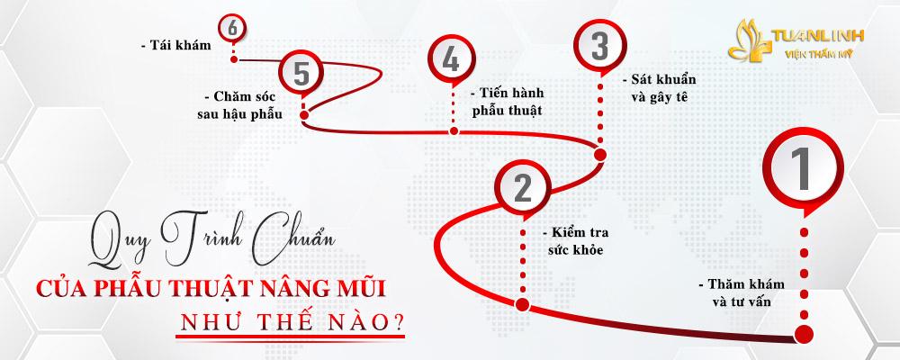 Quy trình nâng mũi tại Tuấn Linh