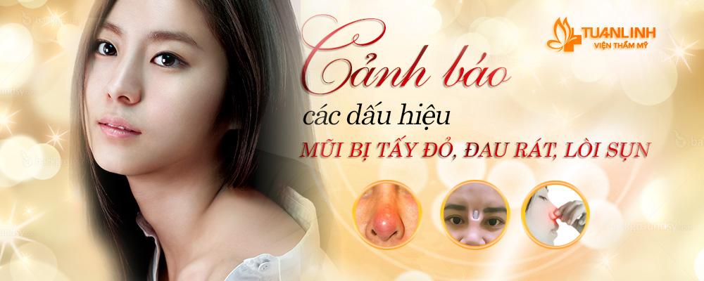 Cảnh báo các dấu hiệu mũi bị sưng tấy, đau rát, lòi sụn