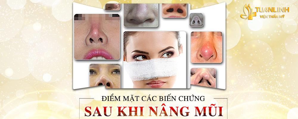 Điểm mặt các biến chứng thường gặp sau nâng mũi