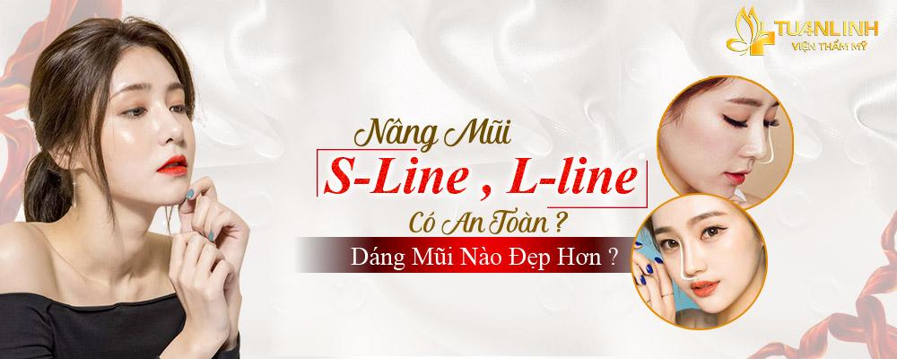 Nâng mũi S Line có an toàn không? S Line hay L Line đẹp hơn?