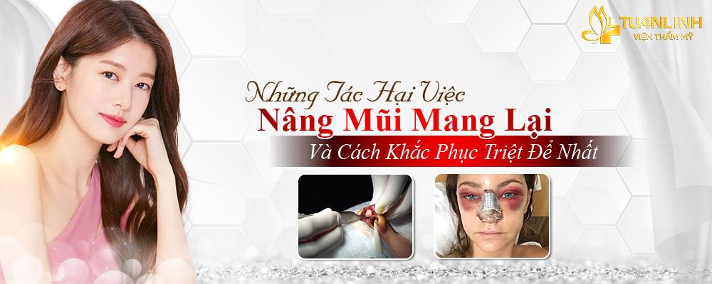 Những tác hại của việc Nâng mũi - Cách khắc phục triệt để