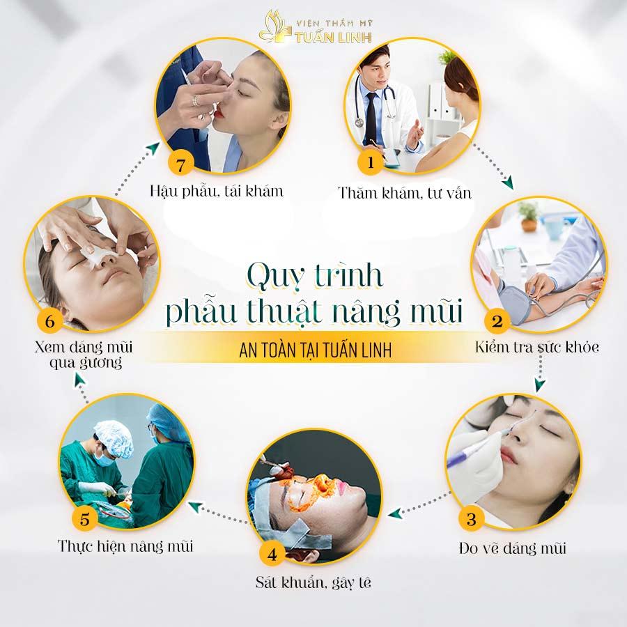 Quy trình phẫu thuật nâng mũi an toàn tại Tuấn Linh