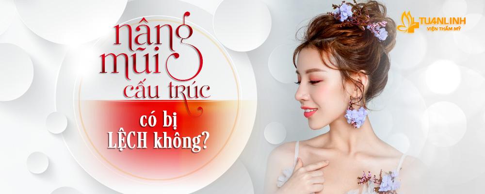 NÂNG MŨI CẤU TRÚC CÓ BỊ LỆCH KHÔNG? - Thẩm mỹ viện Tuấn Linh