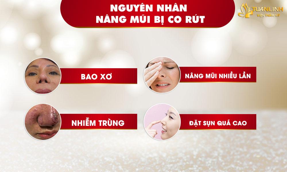 Nguyên nhân nâng mũi bị co rút