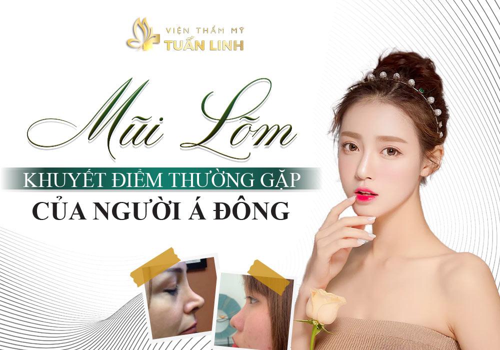Mũi lõm - Khuyết điểm thường gặp của người Á Đông | Những lưu ý quan trọng khi nâng mũi bị lõm bạn cần ghi nhớ