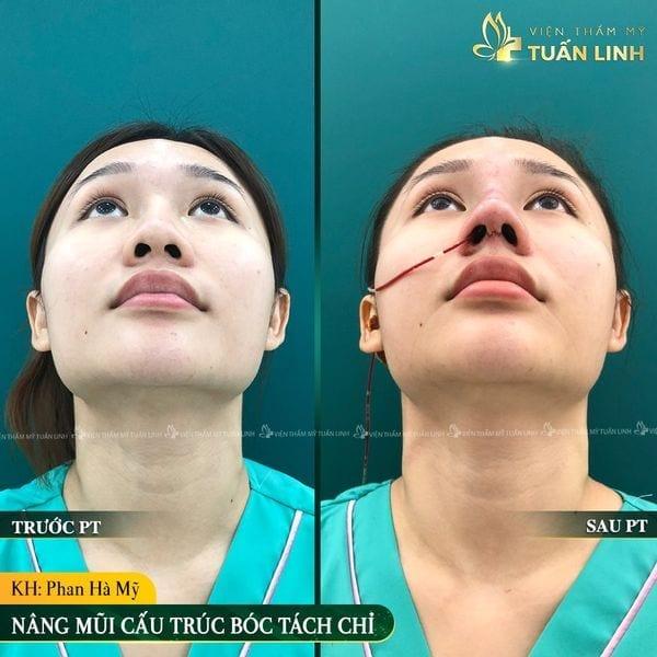 Nâng mũi cấu trúc trả góp | Nâng mũi trả góp - Trả góp không cần trả trước - Làm đẹp không lo về tiền