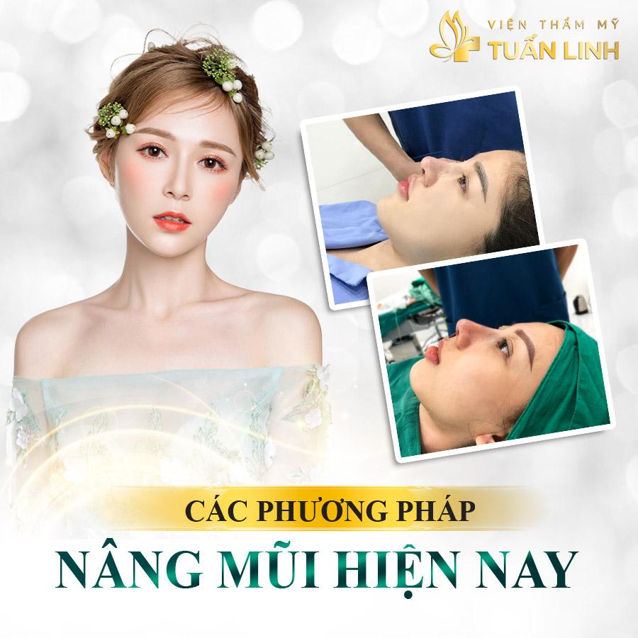 Các phương pháp nâng mũi hiện nay   Tổng hợp Hình ảnh Trước và Sau khi Nâng mũi đẹp Xuất Sắc tại Tuấn Linh