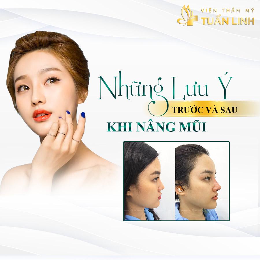 Những lưu ý trước và sau khi nâng mũi   Tổng hợp Hình ảnh Trước và Sau khi Nâng mũi đẹp Xuất Sắc tại Tuấn Linh