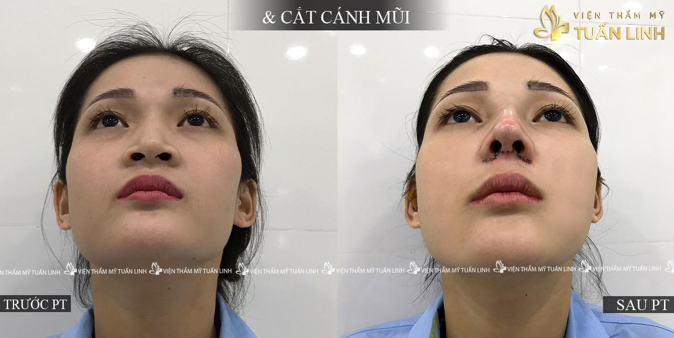 Hình ảnh khách hàng nâng mũi kết hợp thu gọn cánh mũi | Từ A - Z bài tập Thu gọn Cánh mũi TẠI NHÀ mà Không cần phẫu thuật