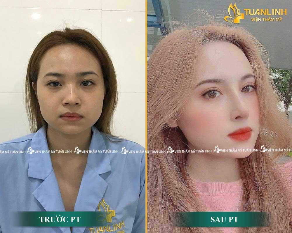 Kết quả combo nâng mũi + cắt mí mắt tại TUẤN LINH