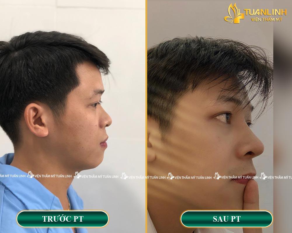 Hình ảnh khách hàng trước - sau khi NÂNG MŨI CHO NAM