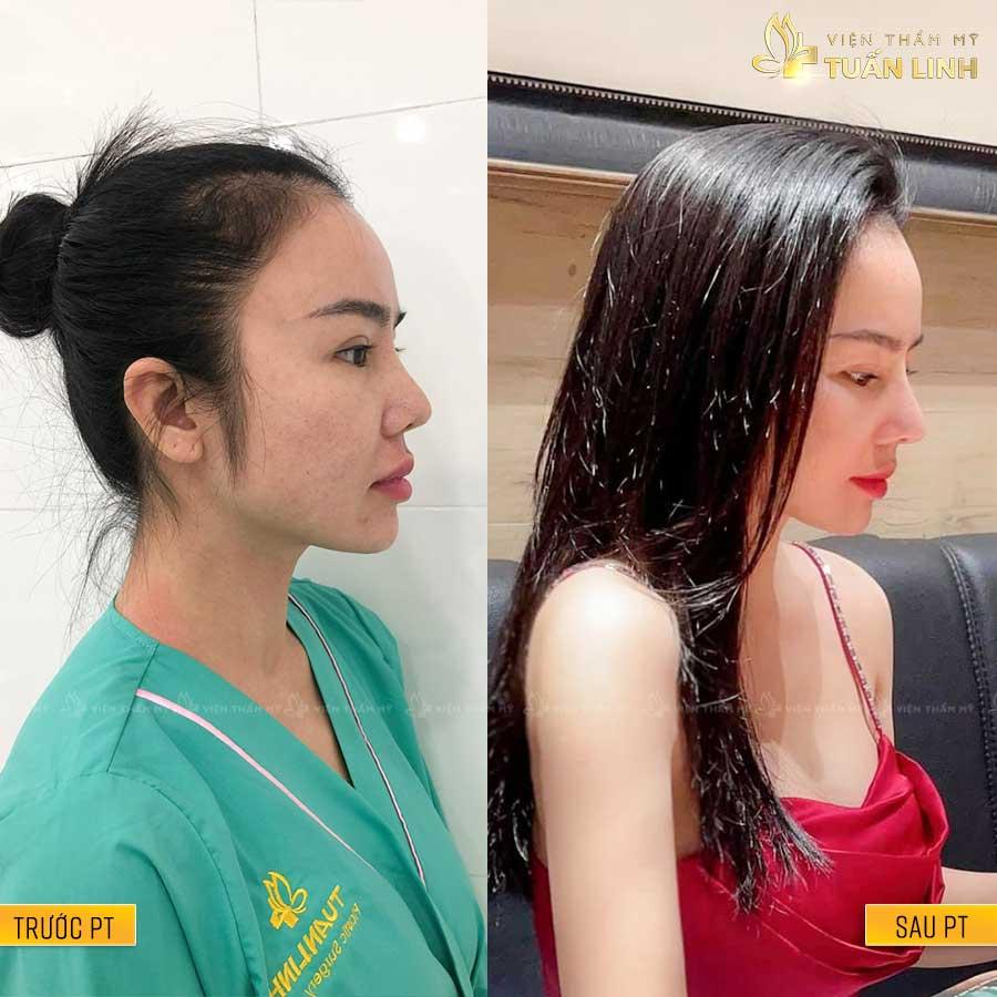 ChiMiNgo - Hình ảnh khách hàng nâng mũi trả góp cùng Tuấn Linh