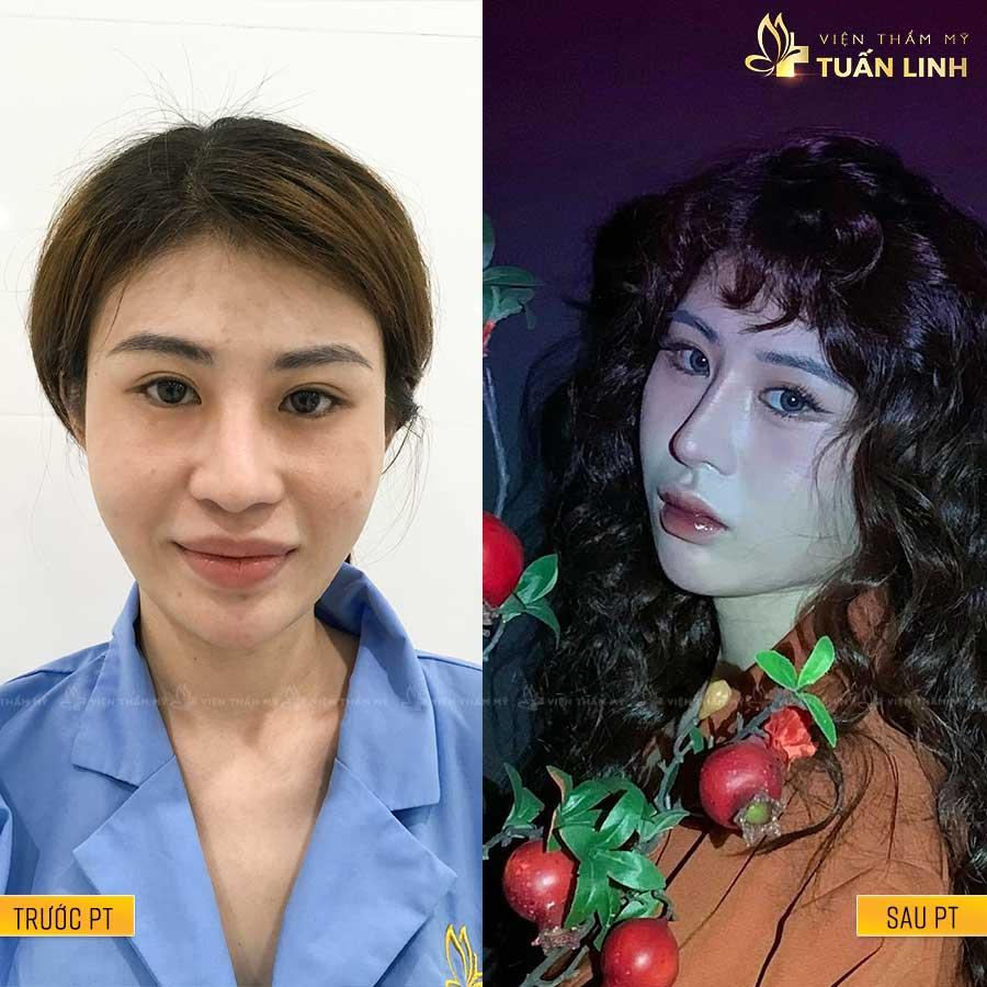 HanMyDuyen - Hình ảnh khách hàng nâng mũi trả góp cùng Tuấn Linh