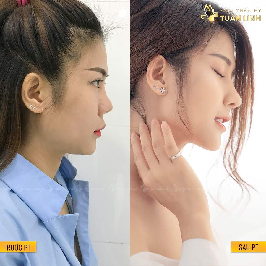 NhiSky - Hình ảnh khách hàng nâng mũi trả góp cùng Tuấn Linh