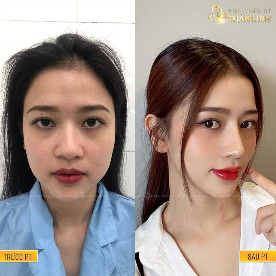 ThanhXuan - Hình ảnh khách hàng nâng mũi trả góp cùng Tuấn Linh