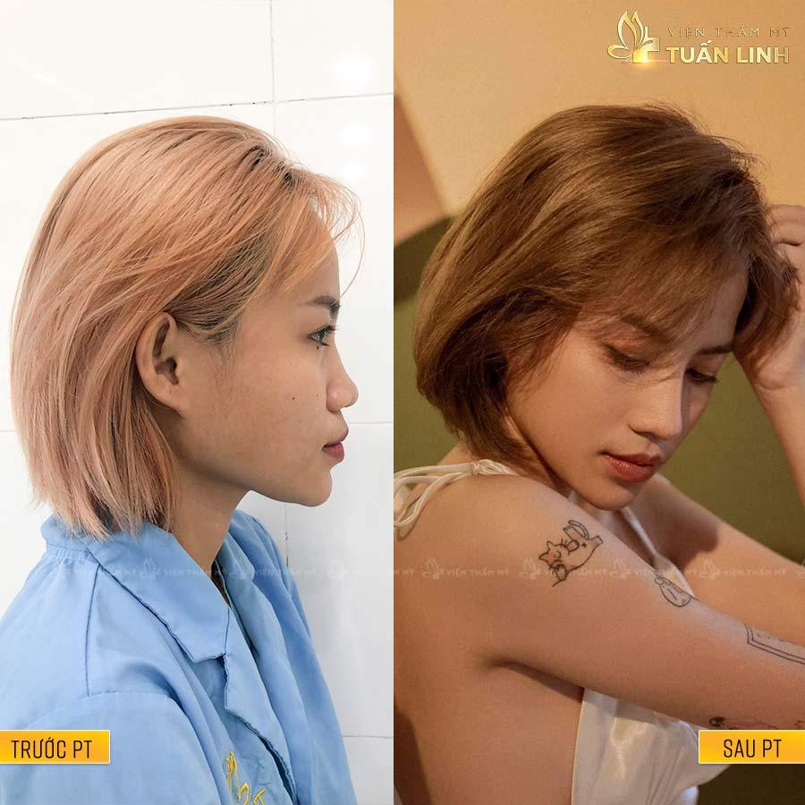 TruongAnhKy - Hình ảnh khách hàng nâng mũi trả góp cùng Tuấn Linh